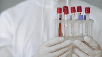В Воронежской области COVID-19 протекает бессимптомно у 50% заболевших воронежцев