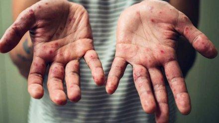 В Воронеже ещё у одного взрослого появились симптомы кори