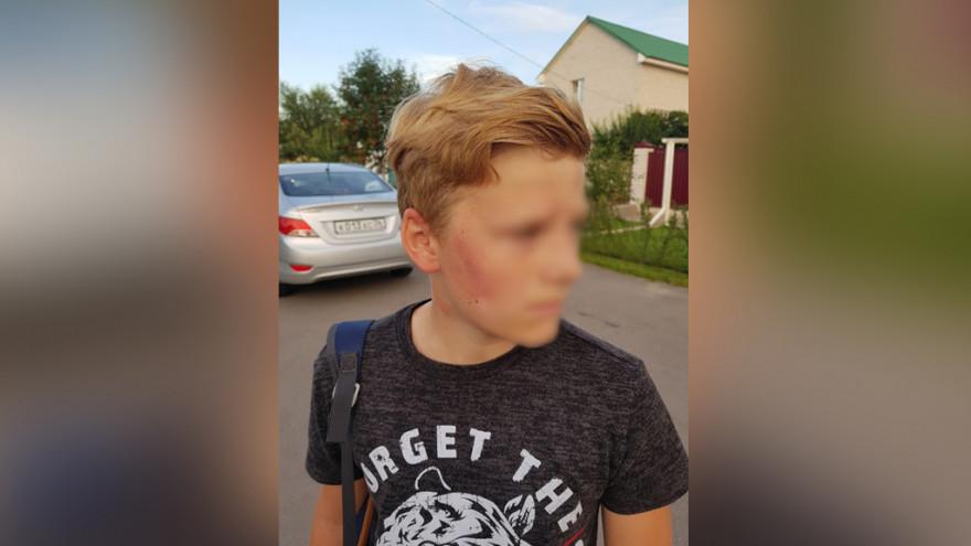 Экс-полицейский избивал 12-летнего мальчика под Воронежем пока тот не упал