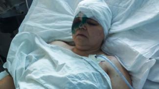 Родные пострадавших в крупном ДТП рассказали об их состоянии
