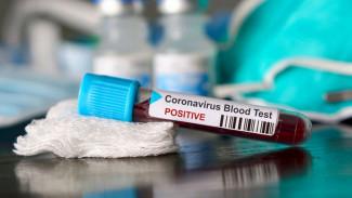 Коронавирус нашли ещё у 131 воронежца
