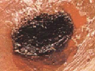 В Воронежской области зафиксирован случай заболевания сибирской язвой