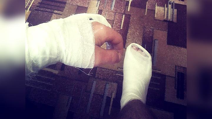 Воронежский велосипедист сломал руку и ногу, попав в яму на Вогрэсовском мосту
