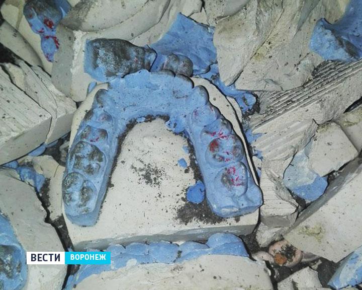 ВВоронеже яму около стоматологической поликлиники засыпали гипсовыми челюстями